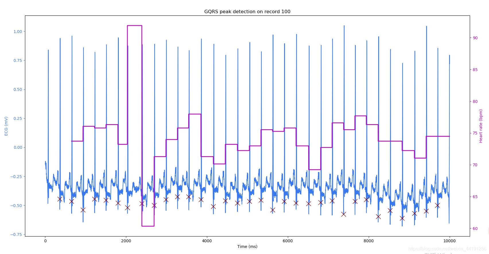 Python中的WFDB库使用- weixin_44191286的博客- CSDN博客