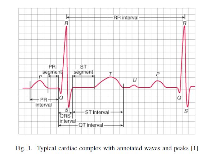 Paper Reading: Supervised ECG Interval Segmentation Using