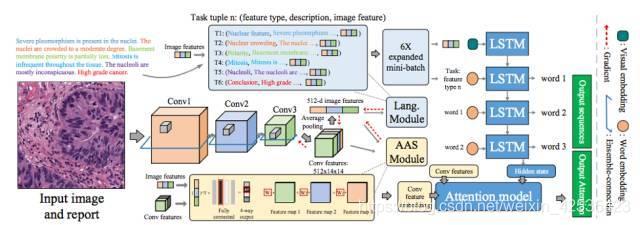MDNet:影像通过 CNN 生成特征后接入 AAS 模块,最后通过 LSTM 生成诊断报告